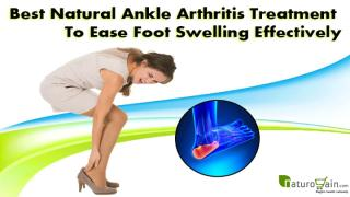 Best Natural Ankle Arthritis Treatment To Ease Foot Swelling Effectively.pptx